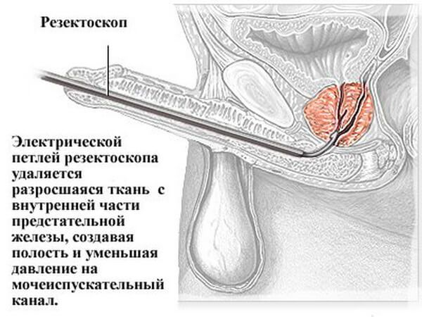 При удалении предстательной железы потенция