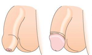 Для сравнения: слева фото фимоза