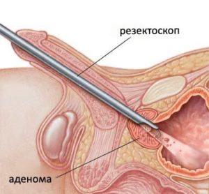 Операция по удалению аденомы простаты с помощью резекоскопа