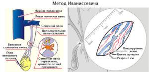 Метод Иваниссевича