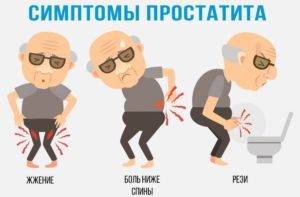 Cимптомы простатита