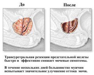 До и после трансуретральной резекции аденомы простаты