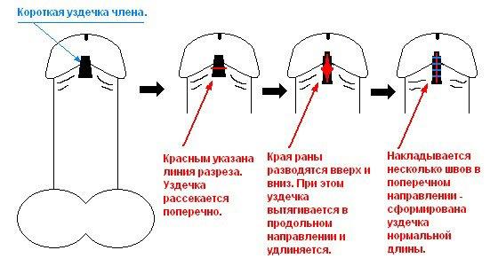 Операция на короткую уздечку у мужчин