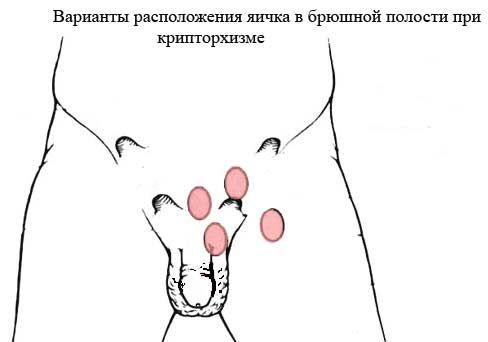 Инструкция по использованию препарата