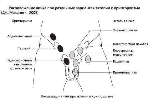 Расположение яичка при различных видах крипторхизма