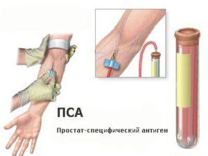 Простатоспецифический антиген (ПСА)